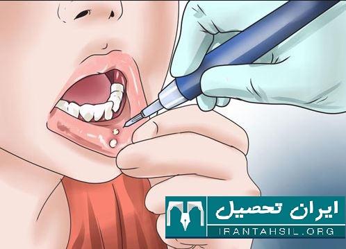 شرایط اخذ معافیت نظام وظیفه دهان و دندان